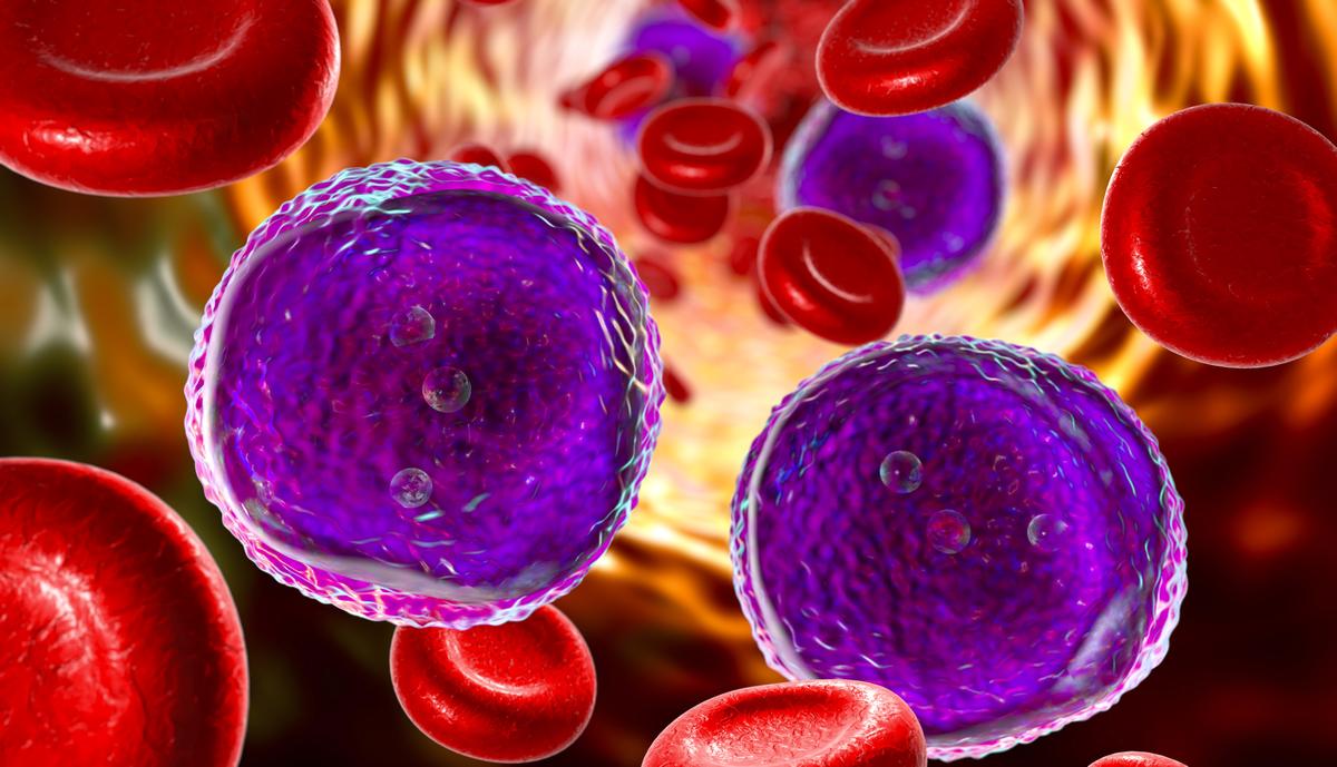 Leukaemia cells